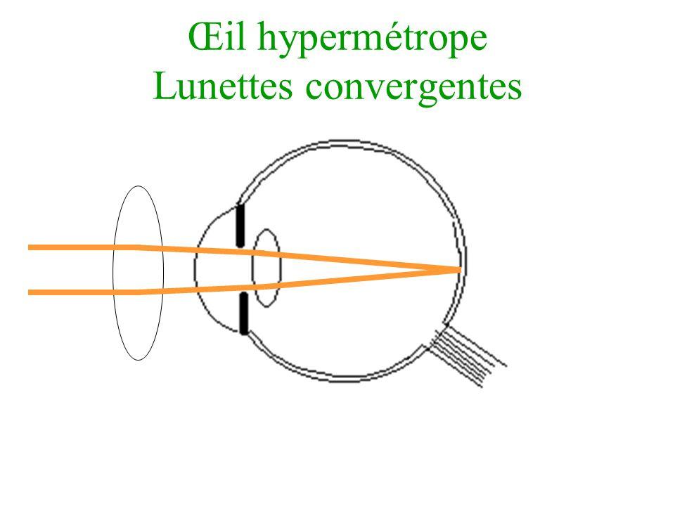Œil hypermétrope Lunettes convergentes