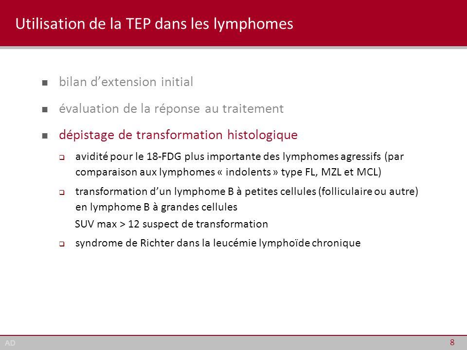 AD LNH folliculaires ♦ PET-scan (fin de Tx) et pronostic (PFS) 19 authorN ptstreatment% PET(+)prognostic significance Bodet-Milin 2008 (1) 22Y 90 epratuzumab relapsed pts 62%med PFS 5.8 mo (vs 15.6 mo) Lopci 2010 (2) 59Y 90 ibritumomab tiotexan relapsed/refractory 54%3-yr PFS 10% (vs 40%) Le Dortz 2010 (3) 45R-CHOP 1 st line 29%med PFS 17.2 mo (vs 48 mo) Trotman 2011 (4) 122R-CHOP, R-CVP 1 st line 26%4-yr PFS 33% (vs 71%) Lopci 2012 (5) 91not reported 1 st line (58%) and relapsed (42%) pts FL grade 3a/3b 58% 26%med PFS ≈ 20 mo (vs ≈ 42 mo) (1) Haematologica 2008, 93: 390, (2) Ann Oncol 2010, 21: 1877, (3) Eur J Nucl Mol Imaging, 2010, 37: 2307, (4) J Clin Oncol 2011, 29: 3194, (5) Eur J Nucl Mol Imaging, 2012, 39: 864