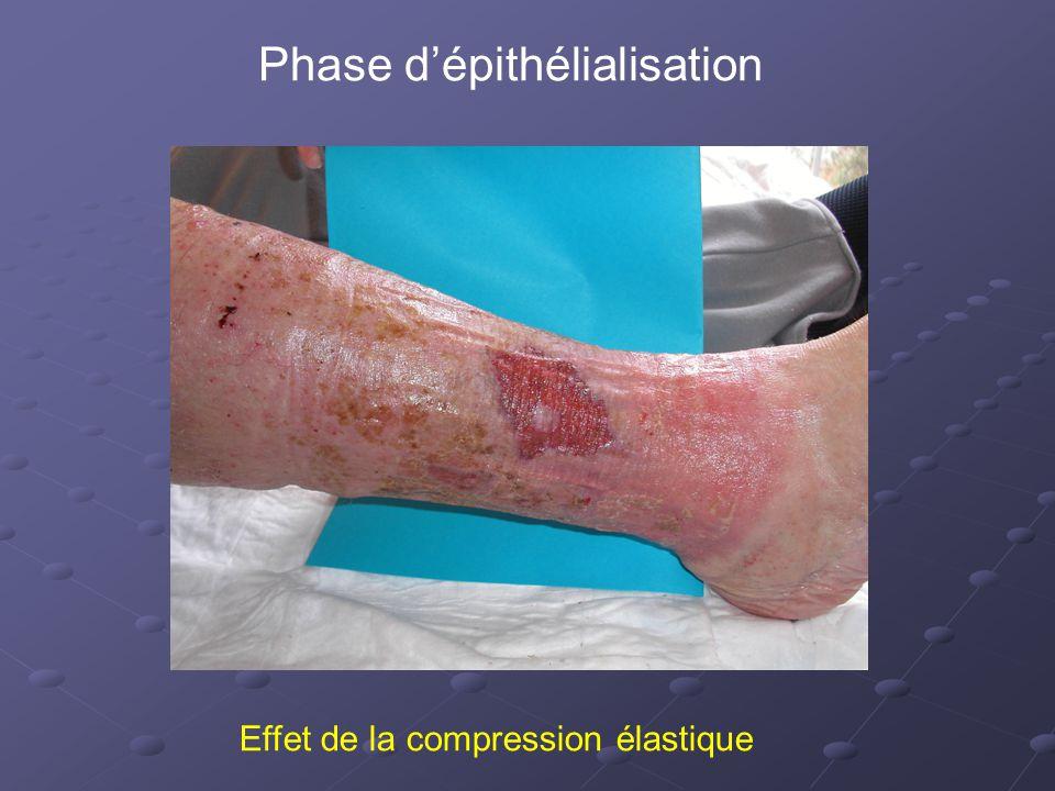 Phase d'épithélialisation Effet de la compression élastique