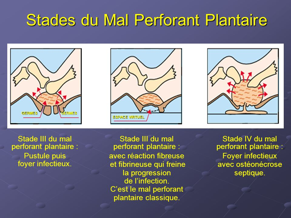 Stades du Mal Perforant Plantaire Stade III du mal perforant plantaire : Pustule puis foyer infectieux.
