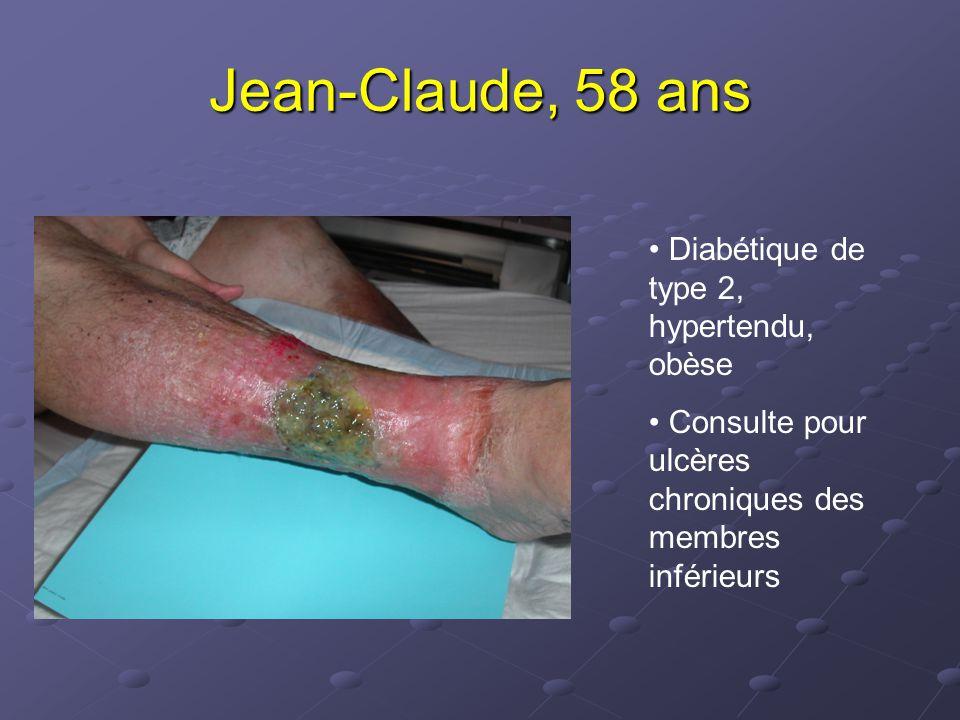 Pansements hydrocolloïdes Algoplaque, Comfeel plaque, DuoDerm, Askina biofilm,… Capacité d'absorption des exsudats, proportionnelle à l'épaisseur du pansement Renouvellement « à saturation » (3 à 7j) Contre-indication : survenue d'un hyperbourgeonnement Effet secondaire : macération de la peau périlésionnelle, odeur désagréable ++ Utilisables à toutes les phases de la cicatrisation