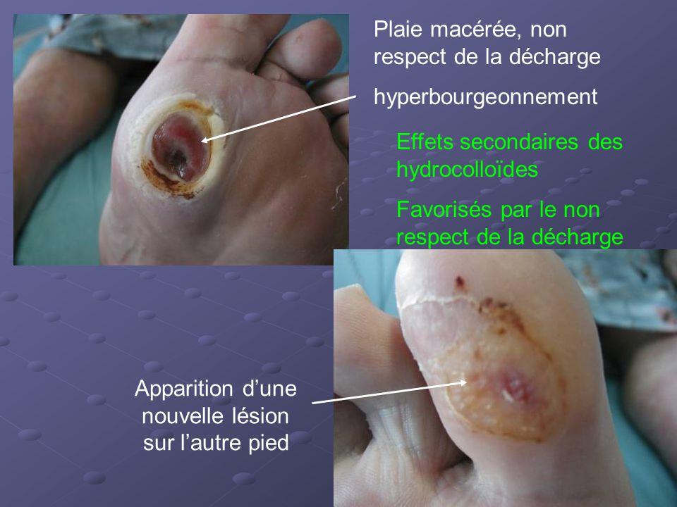 Plaie macérée, non respect de la décharge hyperbourgeonnement Apparition d'une nouvelle lésion sur l'autre pied Effets secondaires des hydrocolloïdes