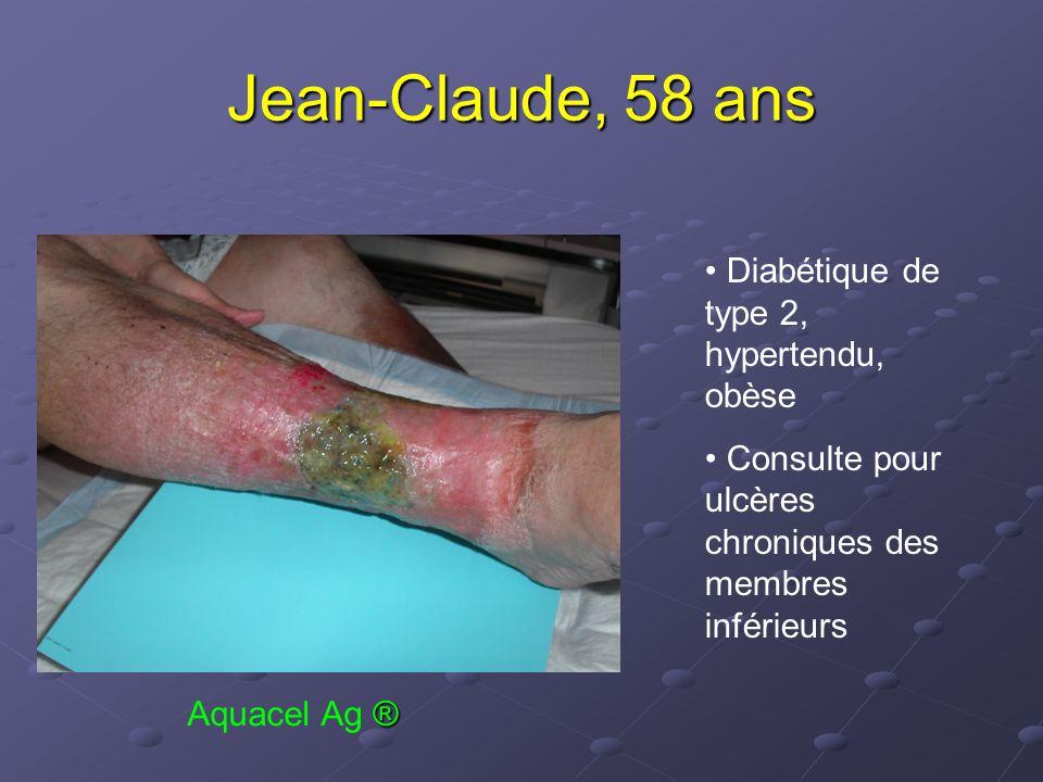 Jean-Claude, 58 ans Diabétique de type 2, hypertendu, obèse Consulte pour ulcères chroniques des membres inférieurs ® Aquacel Ag ®