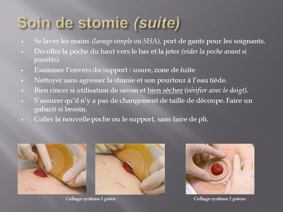  Se laver les mains (lavage simple ou SHA), port de gants pour les soignants.  Décoller la poche du haut vers le bas et la jeter (vider la poche ava