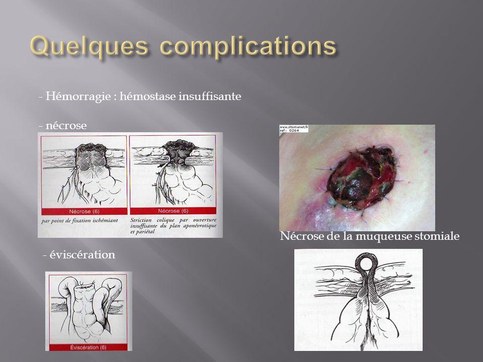 - Hémorragie : hémostase insuffisante - nécrose Nécrose de la muqueuse stomiale - éviscération