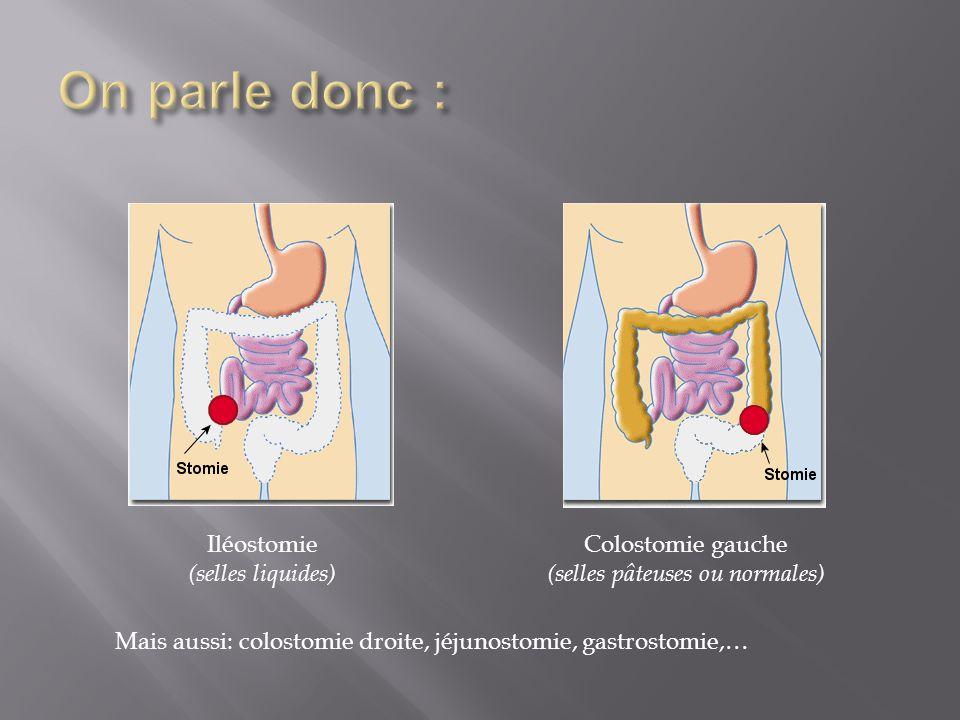 Iléostomie (selles liquides) Colostomie gauche (selles pâteuses ou normales) Mais aussi: colostomie droite, jéjunostomie, gastrostomie,…