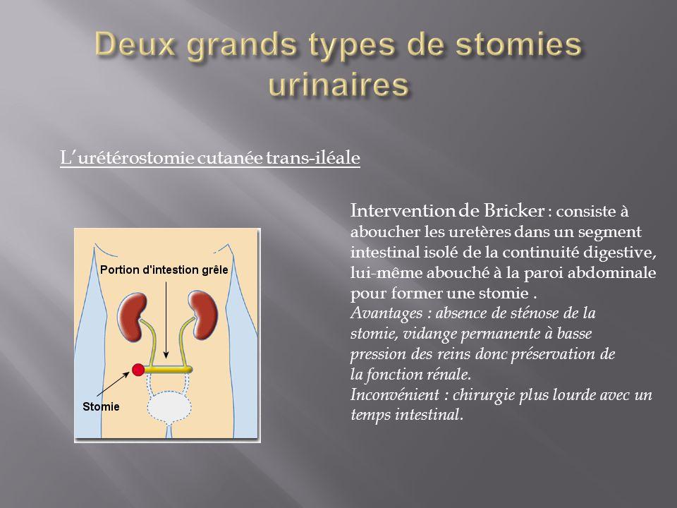 L'urétérostomie cutanée trans-iléale Intervention de Bricker : consiste à aboucher les uretères dans un segment intestinal isolé de la continuité dige