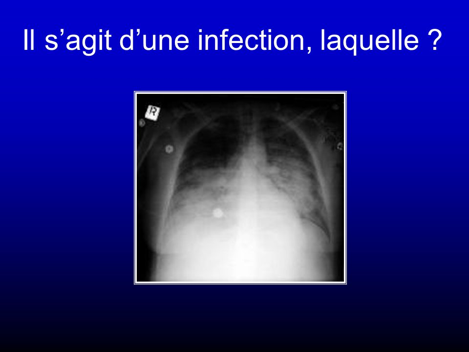 Il s'agit d'une infection, laquelle ?