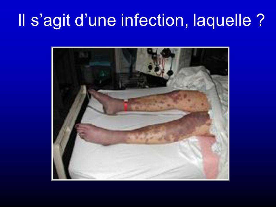 Ce malade a une pyélonephrite et est anurique, pourquoi ?