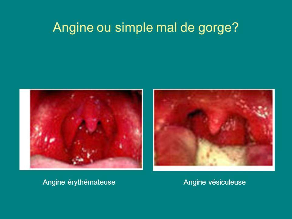 Angine ou simple mal de gorge? Angine érythémateuseAngine vésiculeuse