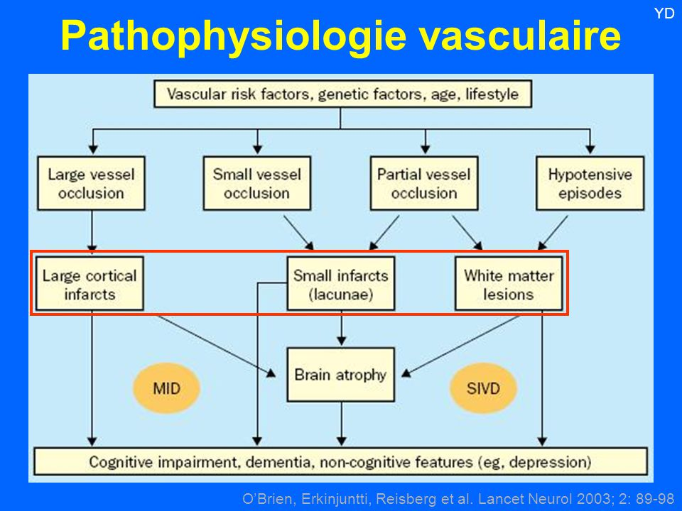 Pathophysiologie vasculaire O'Brien, Erkinjuntti, Reisberg et al. Lancet Neurol 2003; 2: 89-98 YD