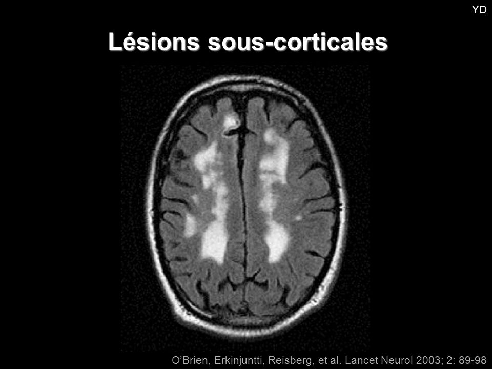 O'Brien, Erkinjuntti, Reisberg, et al. Lancet Neurol 2003; 2: 89-98 Lésions sous-corticales YD