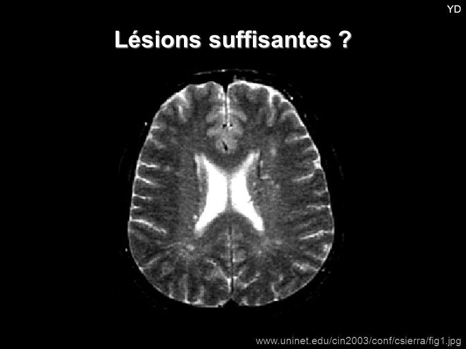 www.uninet.edu/cin2003/conf/csierra/fig1.jpg Lésions suffisantes ? YD