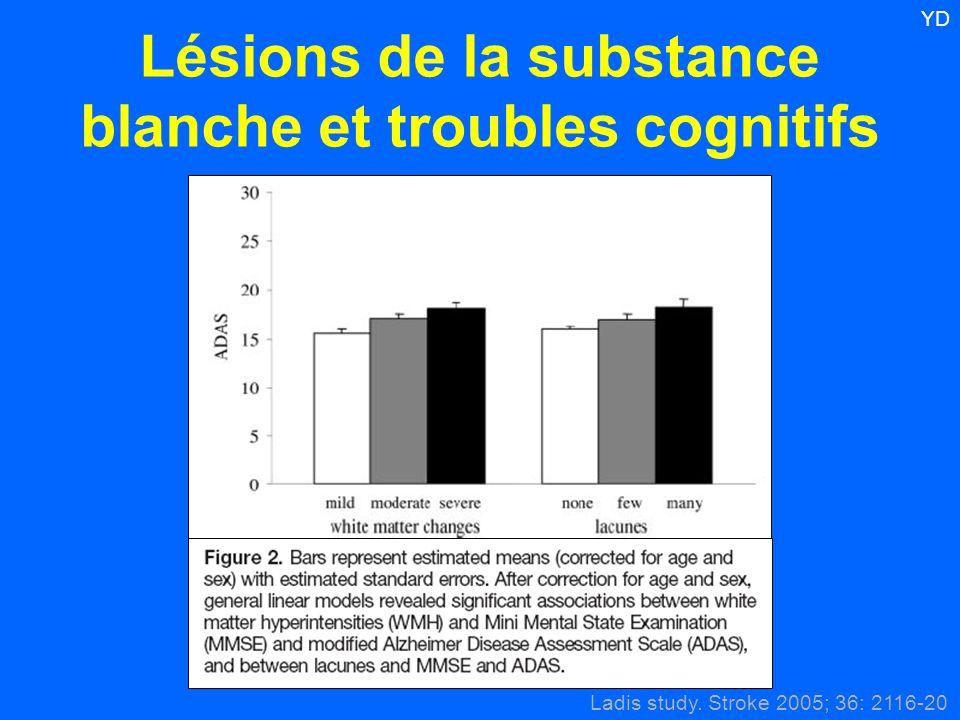 Lésions de la substance blanche et troubles cognitifs Ladis study. Stroke 2005; 36: 2116-20 YD