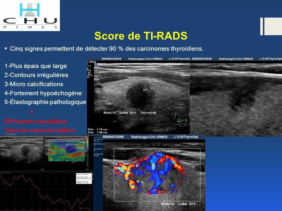 Score de TI-RADS  Cinq signes permettent de détecter 90 % des carcinomes thyroïdiens. 1-Plus épais que large 2-Contours irrégulières 3-Micro calcific