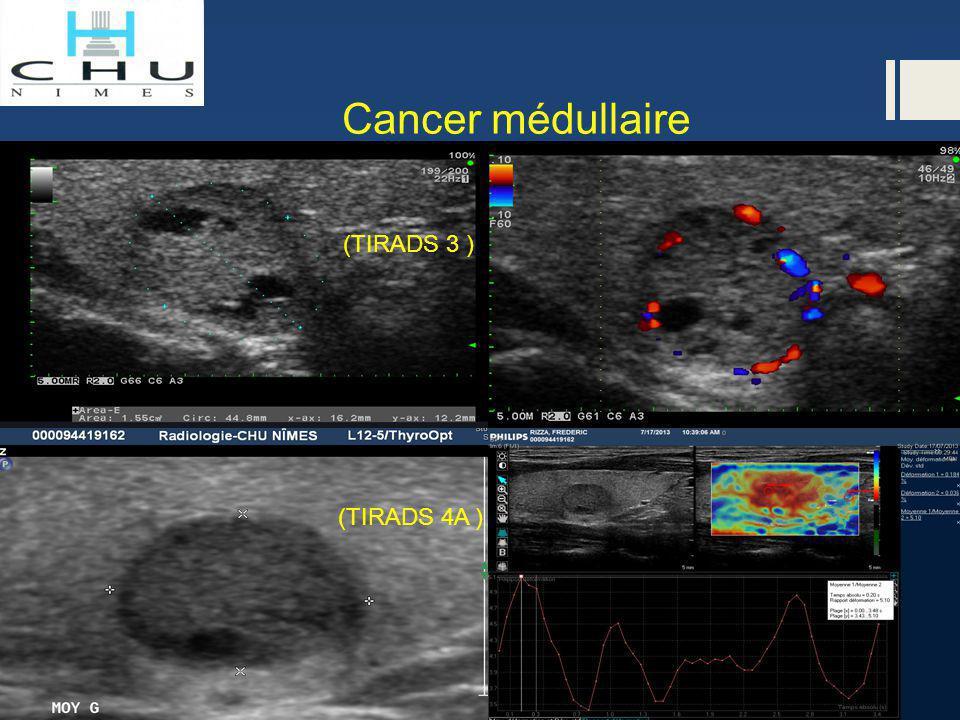 Cancer médullaire (TIRADS 4A ) (TIRADS 3 )