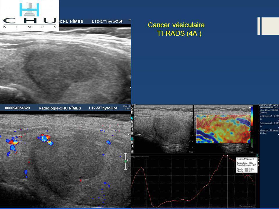 Cancer vésiculaire TI-RADS (4A )
