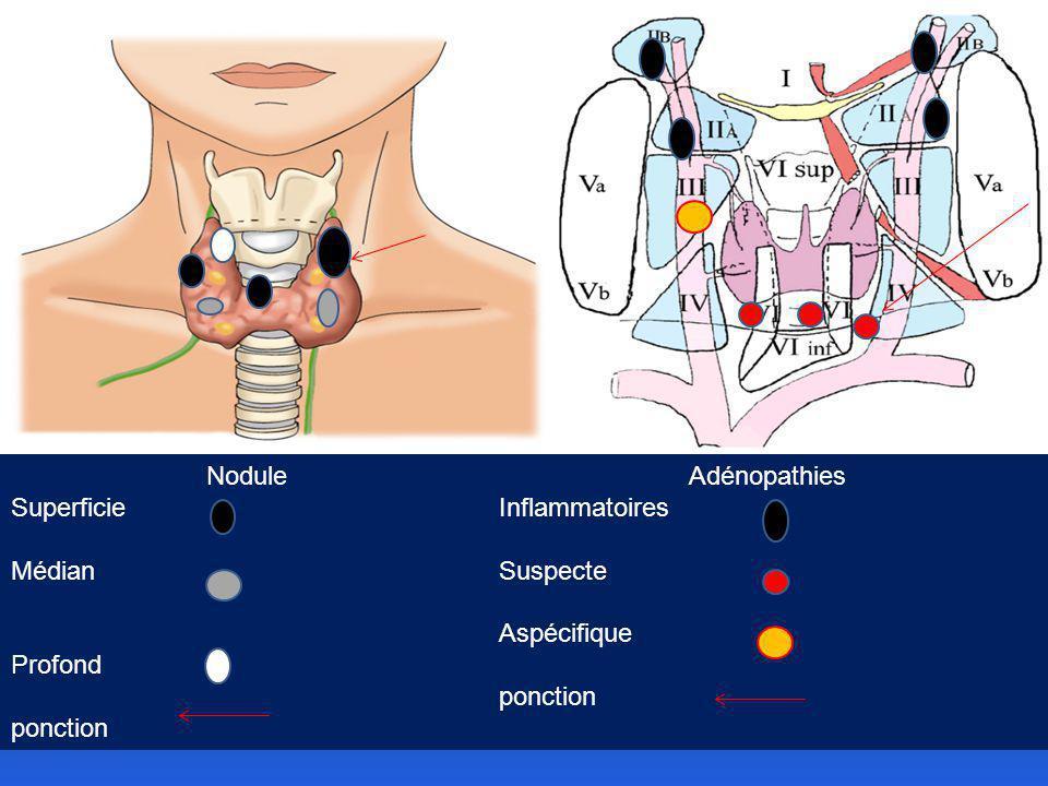 Nodule Superficie Médian Profond ponction Adénopathies Inflammatoires Suspecte Aspécifique ponction