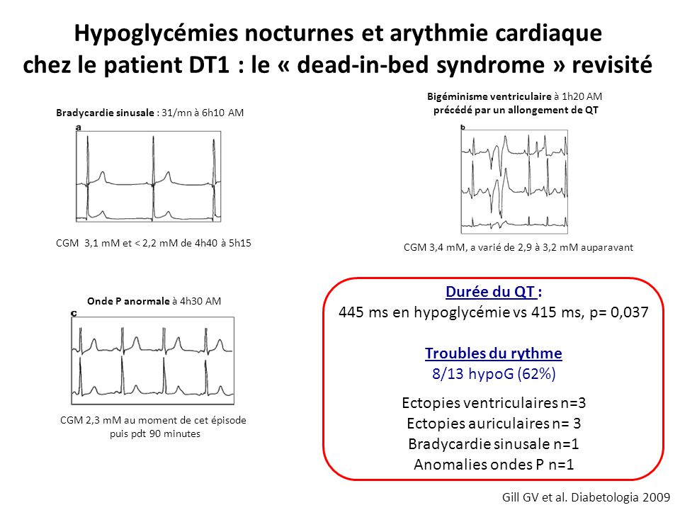 Bradycardie sinusale : 31/mn à 6h10 AM CGM 3,1 mM et < 2,2 mM de 4h40 à 5h15 Bigéminisme ventriculaire à 1h20 AM précédé par un allongement de QT CGM 3,4 mM, a varié de 2,9 à 3,2 mM auparavant Onde P anormale à 4h30 AM CGM 2,3 mM au moment de cet épisode puis pdt 90 minutes Gill GV et al.