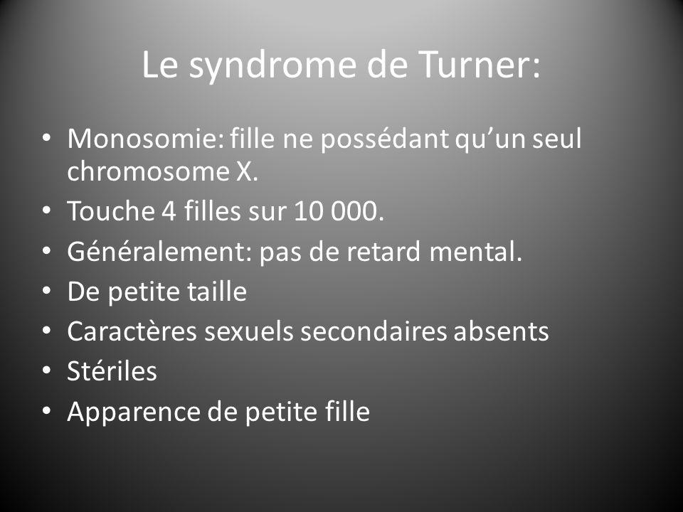 Le syndrome de Turner: Monosomie: fille ne possédant qu'un seul chromosome X. Touche 4 filles sur 10 000. Généralement: pas de retard mental. De petit