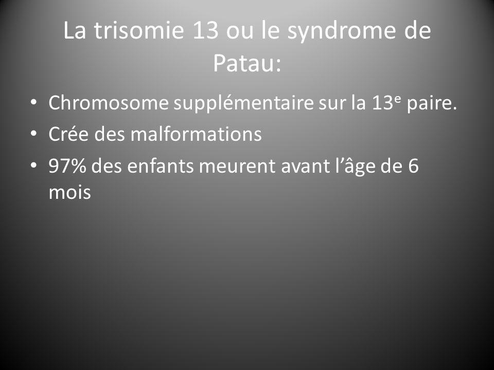 La trisomie 13 ou le syndrome de Patau: Chromosome supplémentaire sur la 13 e paire. Crée des malformations 97% des enfants meurent avant l'âge de 6 m