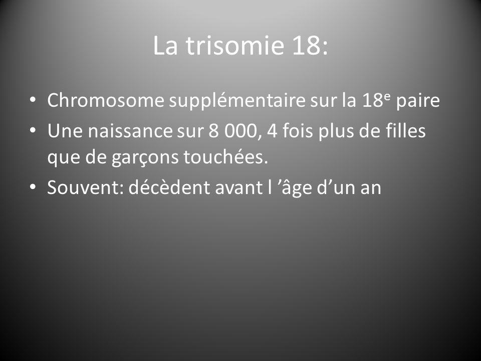 La trisomie 18: Chromosome supplémentaire sur la 18 e paire Une naissance sur 8 000, 4 fois plus de filles que de garçons touchées. Souvent: décèdent
