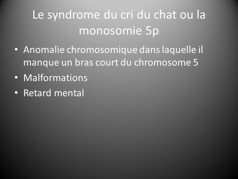 Le syndrome du cri du chat ou la monosomie 5p Anomalie chromosomique dans laquelle il manque un bras court du chromosome 5 Malformations Retard mental