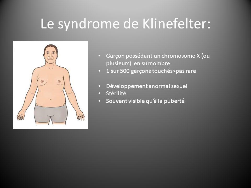 Le syndrome de Klinefelter: Garçon possédant un chromosome X (ou plusieurs) en surnombre 1 sur 500 garçons touchés>pas rare Développement anormal sexuel Stérilité Souvent visible qu'à la puberté