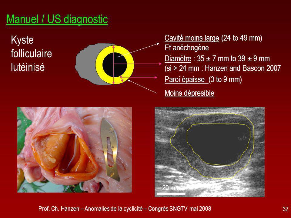 Prof. Ch. Hanzen – Anomalies de la cyclicité – Congrès SNGTV mai 2008 32 Manuel / US diagnostic Kyste folliculaire lutéinisé Cavité moins large (24 to