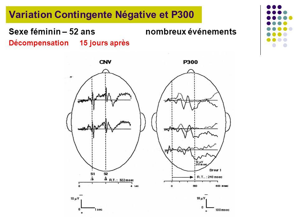 Variation Contingente Négative et P300 Sexe féminin – 52 ans nombreux événements Décompensation 15 jours après