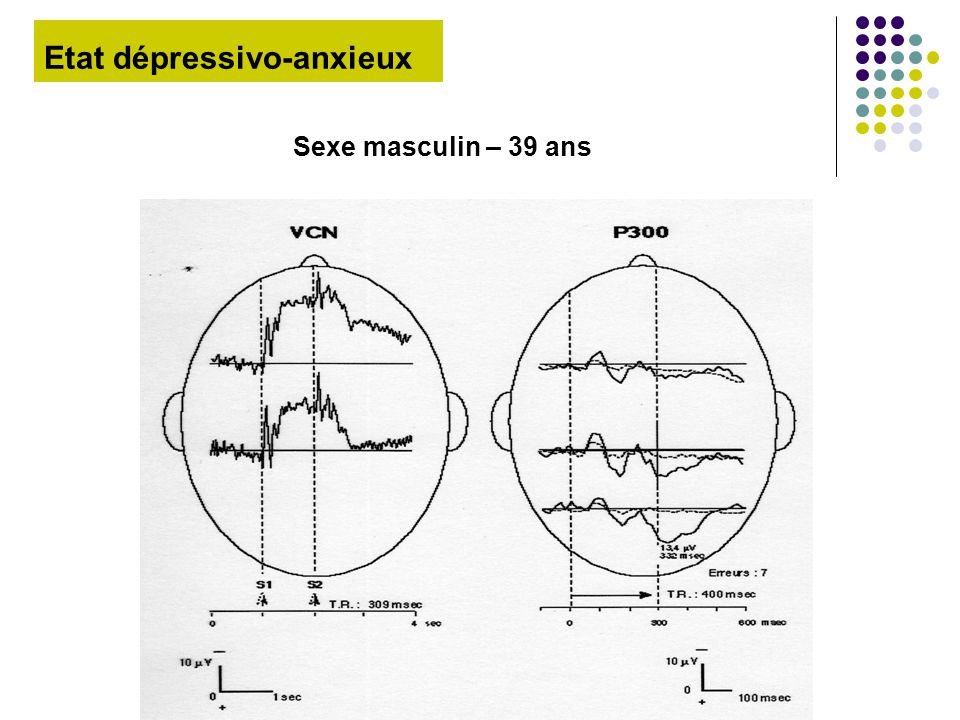Etat dépressivo-anxieux Sexe masculin – 39 ans