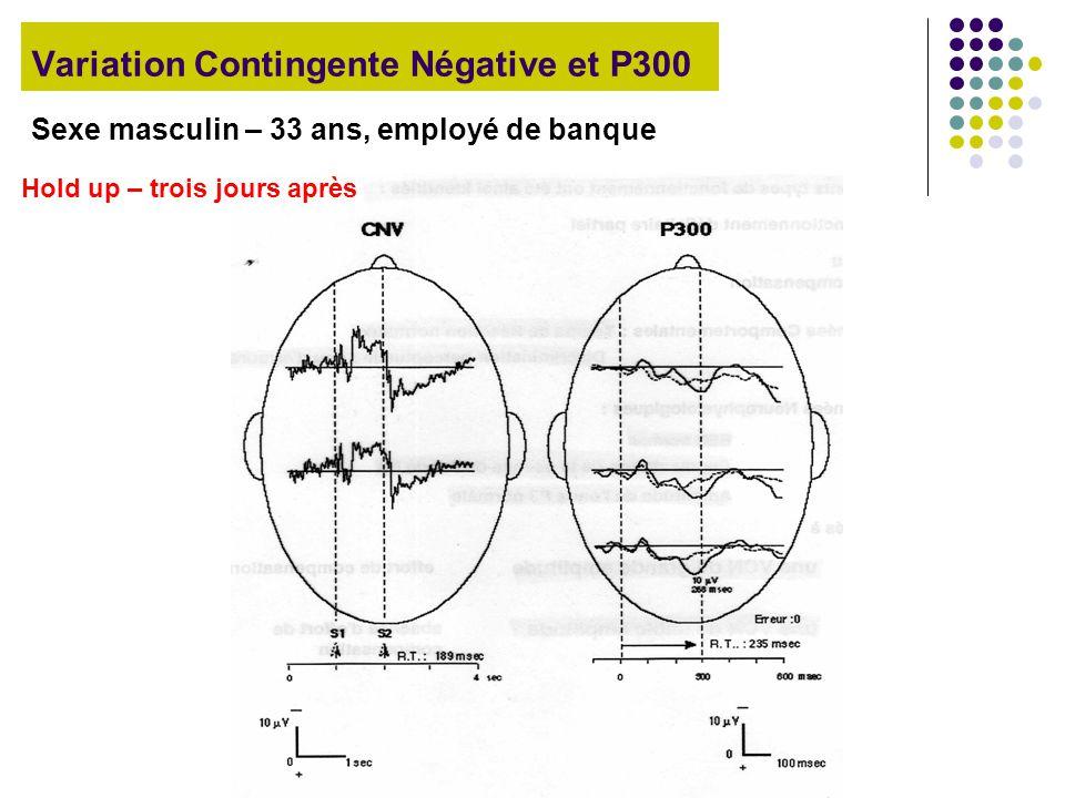 Variation Contingente Négative et P300 Sexe masculin – 33 ans, employé de banque Hold up – trois jours après