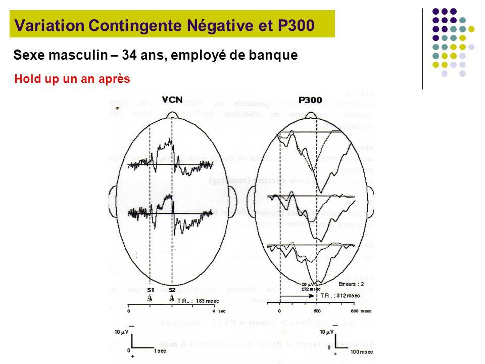 Variation Contingente Négative et P300 Sexe masculin – 34 ans, employé de banque Hold up un an après
