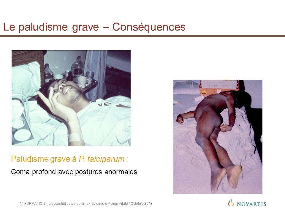 11 Paludisme grave à P. falciparum : Coma profond avec postures anormales Le paludisme grave – Conséquences