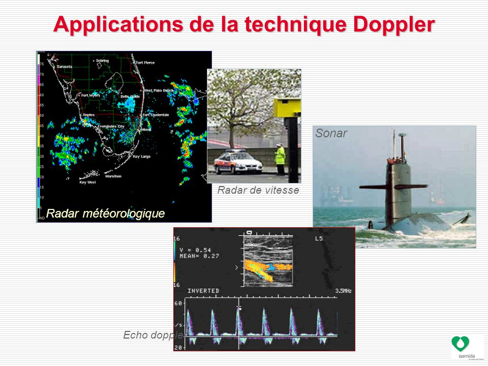 Applications de la technique Doppler Radar météorologique Radar de vitesse Echo doppler Sonar
