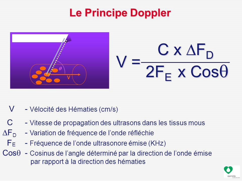 V - Vélocité des Hématies (cm/s) C - Vitesse de propagation des ultrasons dans les tissus mous   F D - Variation de fréquence de l'onde réfléchie F E - Fréquence de l'onde ultrasonore émise (KHz) Cos  - Cosinus de l'angle déterminé par la direction de l'onde émise par rapport à la direction des hématies Le Principe Doppler V = V  C x  F D 2F E x Cos  V =