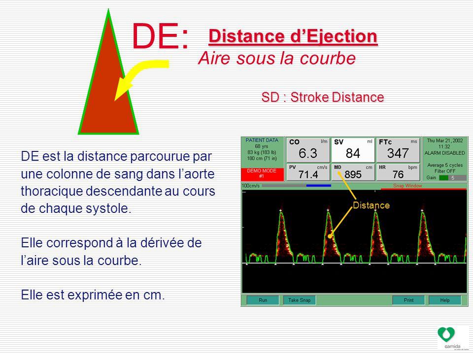 DE: Distance d'Ejection Aire sous la courbe DE est la distance parcourue par une colonne de sang dans l'aorte thoracique descendante au cours de chaque systole.