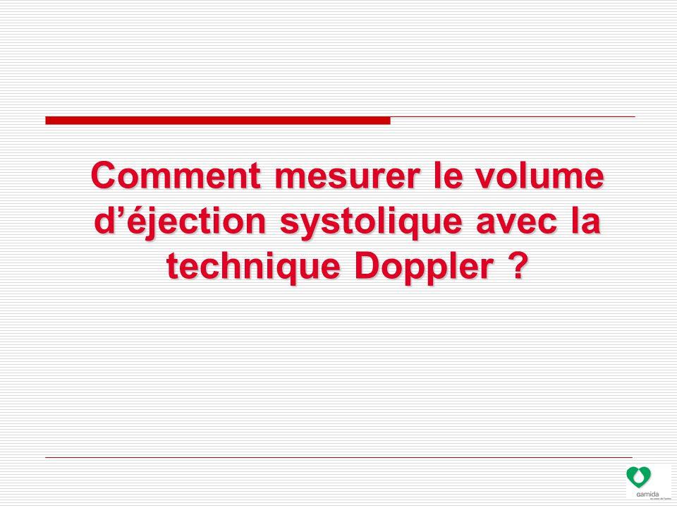 Comment mesurer le volume d'éjection systolique avec la technique Doppler ?