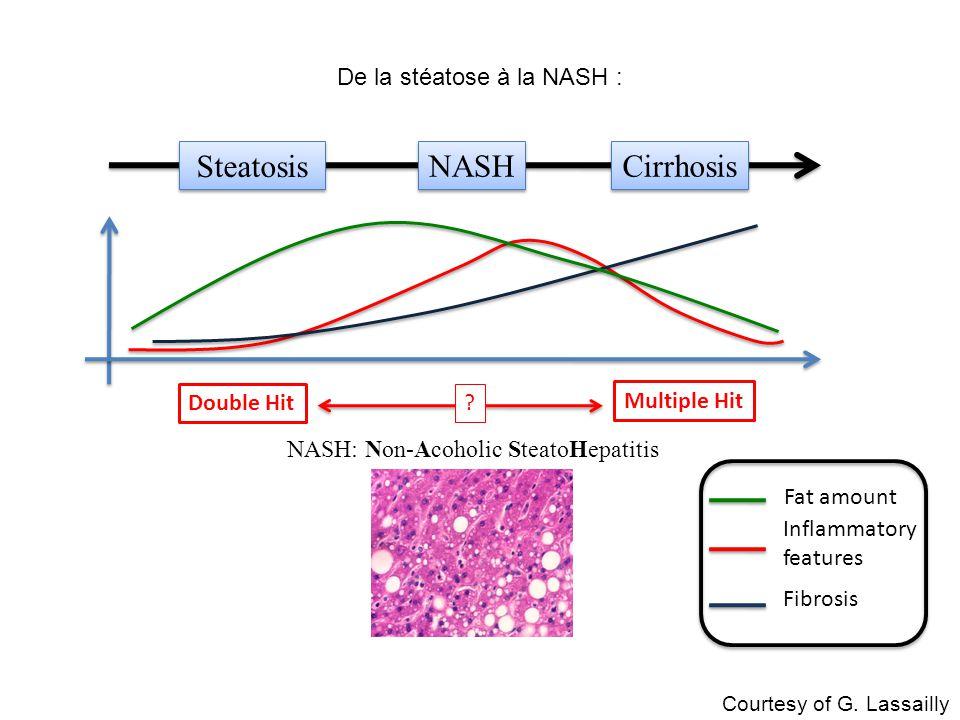 De la stéatose à la NASH : NASH Cirrhosis Steatosis NASH: Non-Acoholic SteatoHepatitis Fat amount Inflammatory features Fibrosis Double Hit Multiple H
