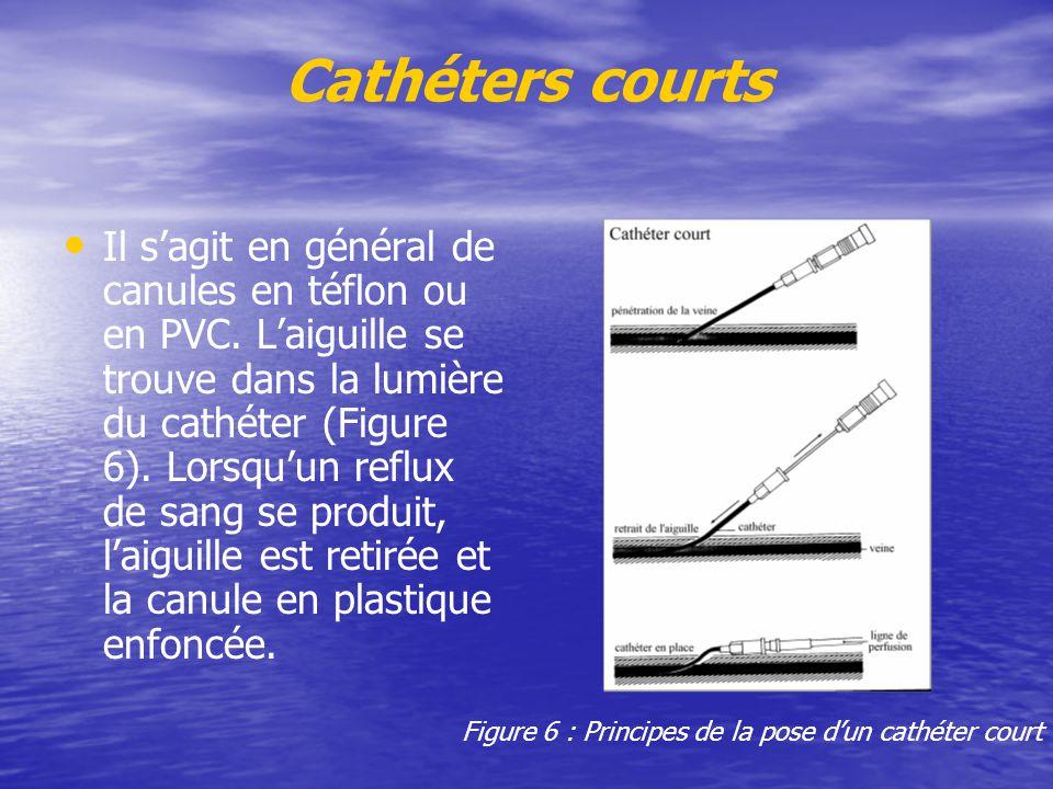 Cathéters courts Il s'agit en général de canules en téflon ou en PVC. L'aiguille se trouve dans la lumière du cathéter (Figure 6). Lorsqu'un reflux de