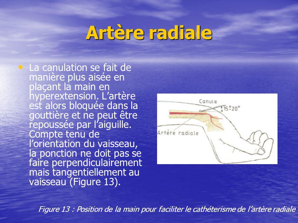 Artère radiale La canulation se fait de manière plus aisée en plaçant la main en hyperextension. L'artère est alors bloquée dans la gouttière et ne pe