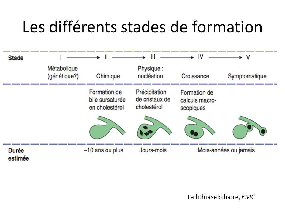 Les différents stades de formation La lithiase biliaire, EMC