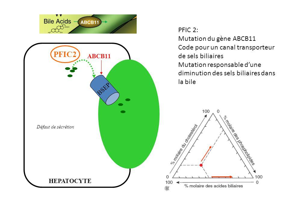 BSEP ABCB11 PFIC2 HEPATOCYTE Défaut de sécrétion PFIC 2: Mutation du gène ABCB11 Code pour un canal transporteur de sels biliaires Mutation responsabl