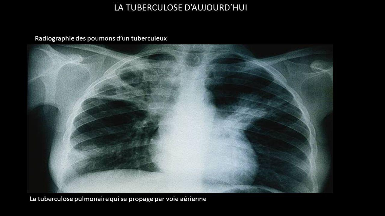 LA TUBERCULOSE D'AUJOURD'HUI Les symptômes