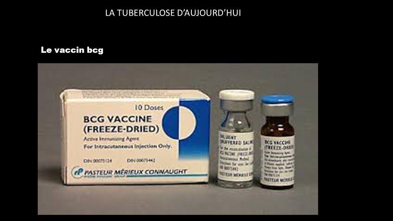 LA TUBERCULOSE D'AUJOURD'HUI Le vaccin bcg