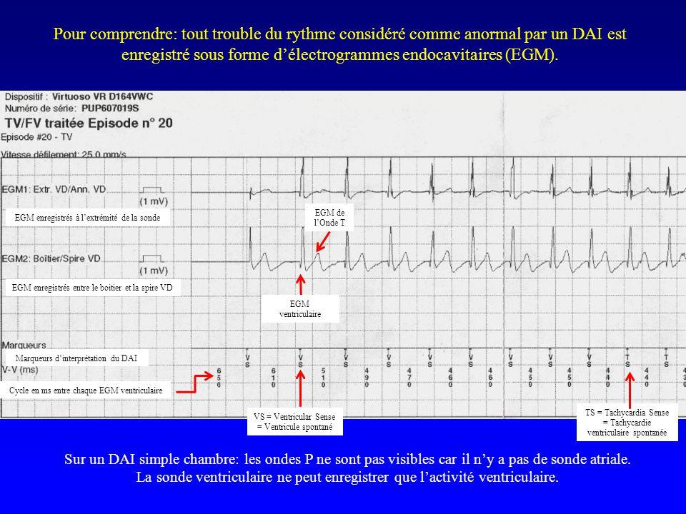 Pour comprendre: tout trouble du rythme considéré comme anormal par un DAI est enregistré sous forme d'électrogrammes endocavitaires (EGM). EGM enregi