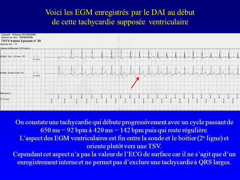 Voici les EGM enregistrés par le DAI au début de cette tachycardie supposée ventriculaire On constate une tachycardie qui débute progressivement avec