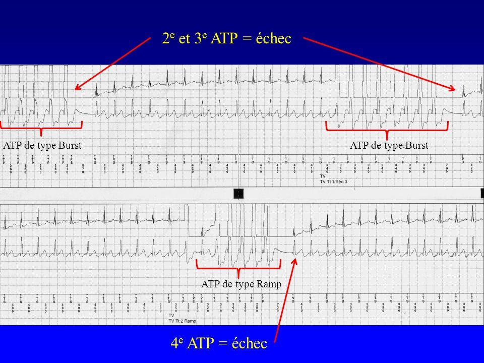 2 e et 3 e ATP = échec 4 e ATP = échec ATP de type Burst ATP de type Ramp