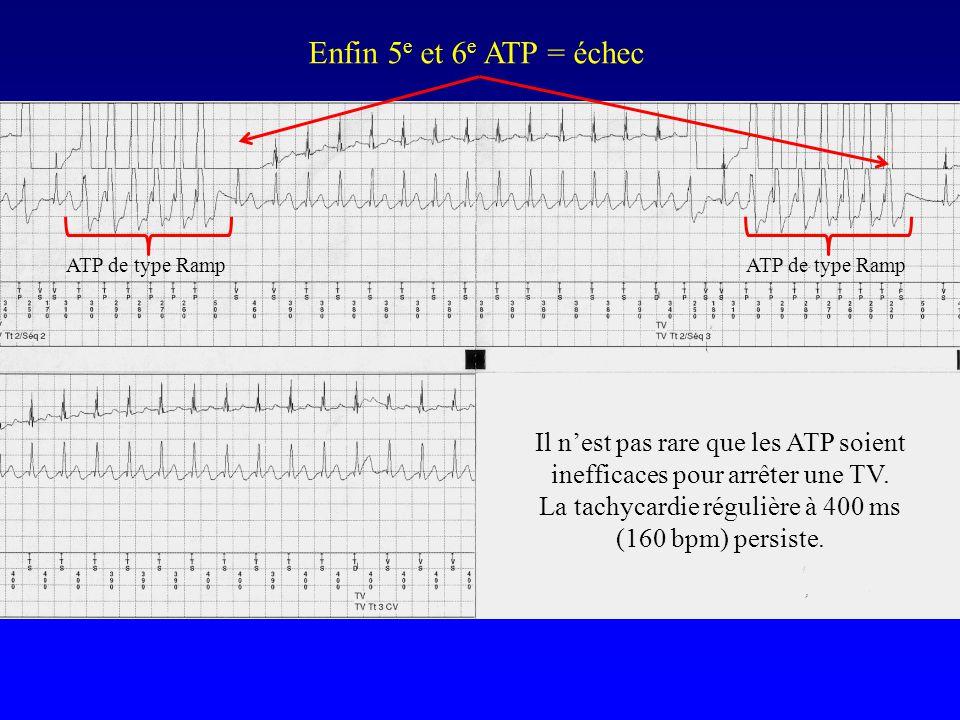 Enfin 5 e et 6 e ATP = échec Il n'est pas rare que les ATP soient inefficaces pour arrêter une TV. La tachycardie régulière à 400 ms (160 bpm) persist