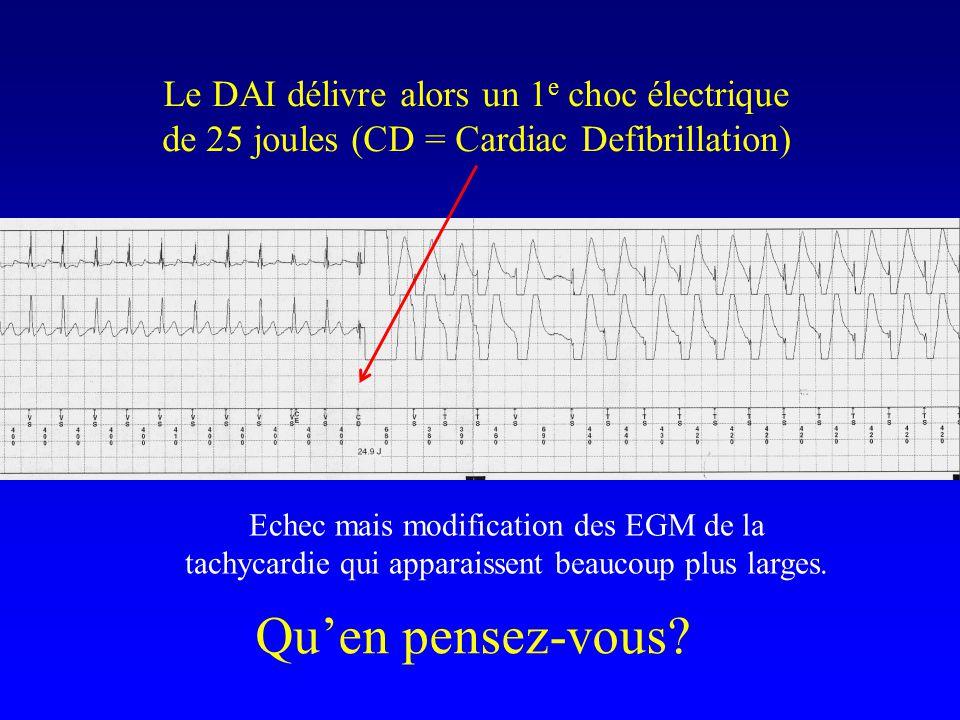 Qu'en pensez-vous? Le DAI délivre alors un 1 e choc électrique de 25 joules (CD = Cardiac Defibrillation) Echec mais modification des EGM de la tachyc